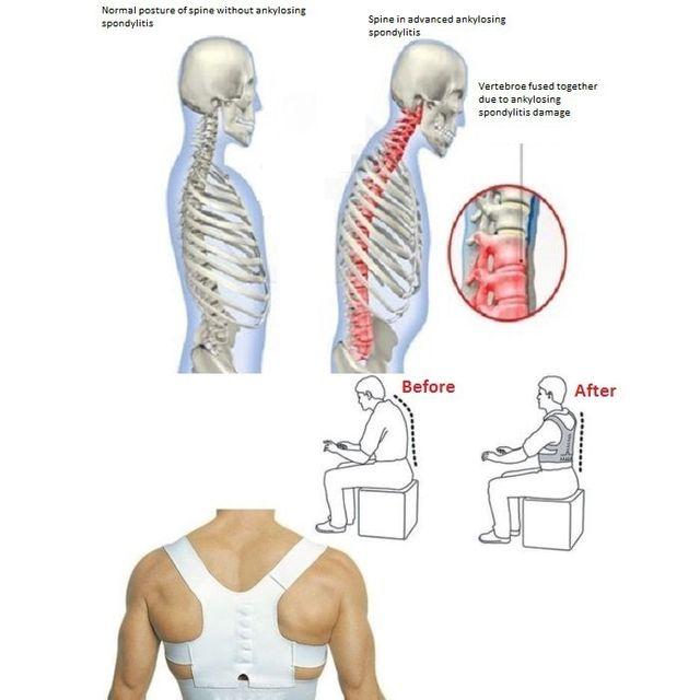 Đai định hình Dr.Levines - Định hình vai cổ gáy